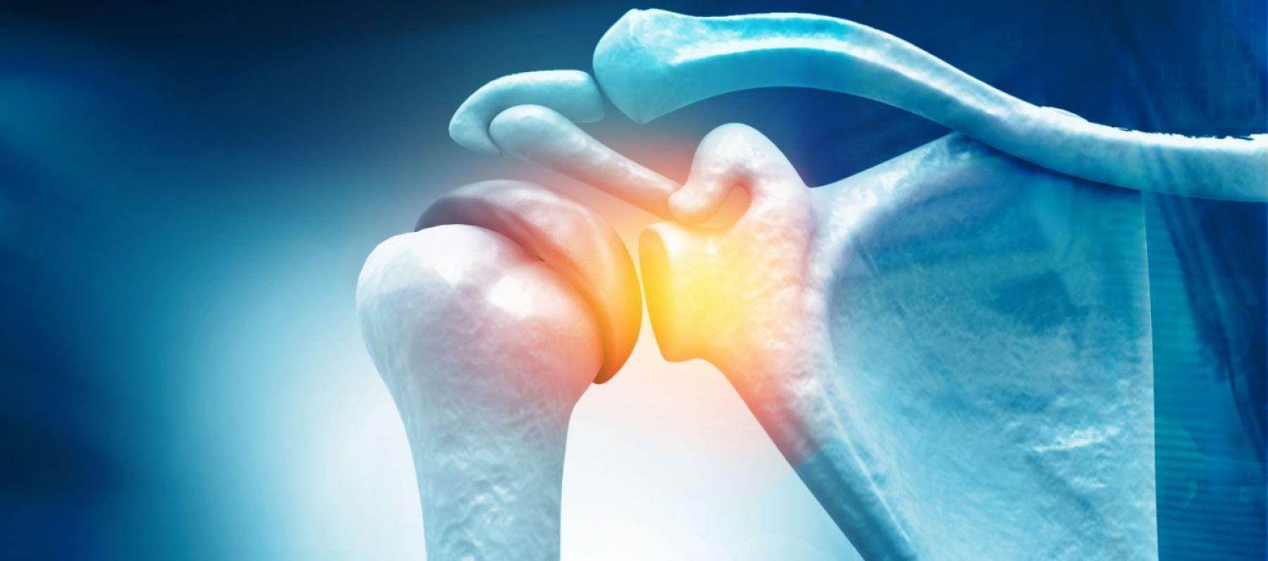Co-design project for better bone health